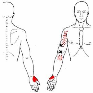 Triggerpunkter er myoser og overspændte muskler
